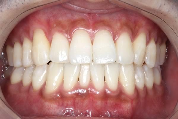 したい 白く 歯 を